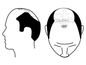 Hair loss image